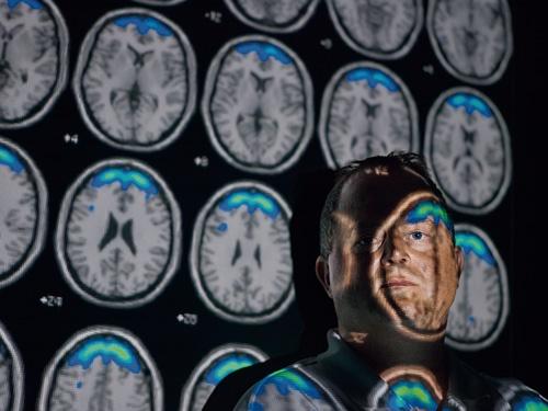 """<span class=""""fontBold"""">利他的な行動をとる人の脳の中では扁桃体が大きく、サイコパスの脳では逆に小さいという傾向があることが長年の脳の研究で明らかに</span>"""