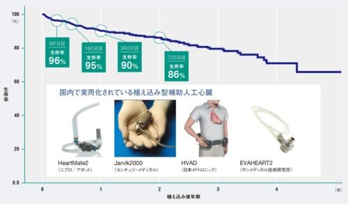 補助人工心臓の開発が進む<br /><small>●補助人工心臓植え込み後の生存率曲線</small>