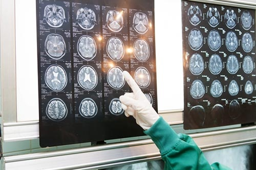 2015年2月に脳梗塞を発症、翌月に急性期病院からリハビリのための病院に転院し、スパルタ式のリハビリを始めた。 ※写真はイメージです=以下同 (写真:PIXTA)
