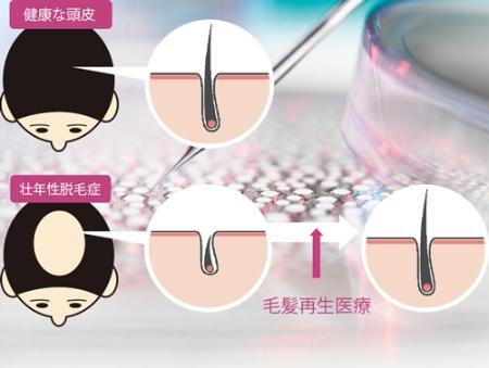 "<span class=""titll-b"">薄毛・脱毛は「毛包」が小さくなった状態</span><br />●薄毛のメカニズムと毛髪再生医療のコンセプト"