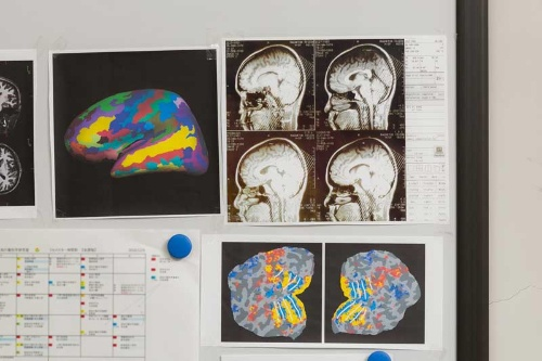 脳に視覚皮質や聴覚皮質はあっても、時間皮質は存在しない。