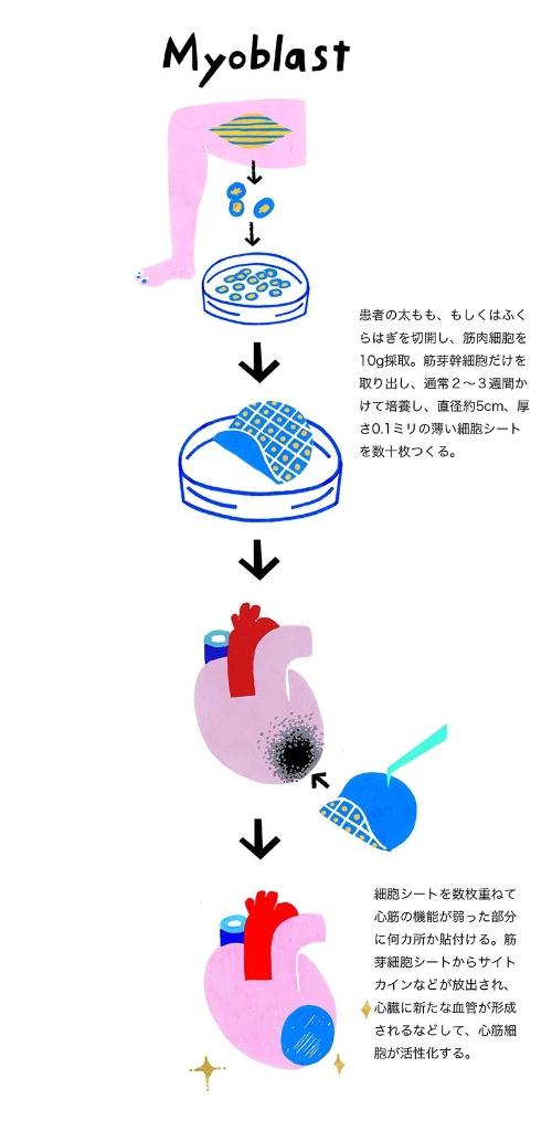 筋芽細胞シートの移植手術