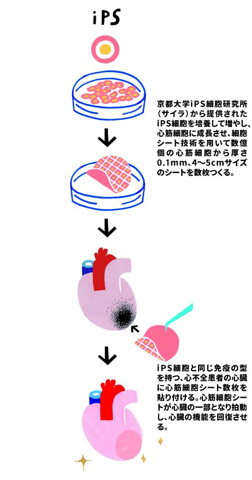 iPS細胞由来の心筋シートの移植手術