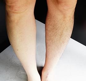 実際に処理してみるとその違いは一目瞭然。右足はアタッチメントなしで処理したものだ