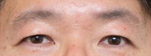 眉の横幅、長さともにあるが、余分な部分も多めでぼやけた印象に見える