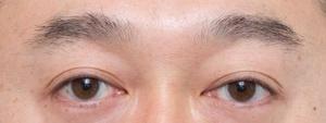 眉は濃いが短めなのでストレートタイプにすると老けた印象に見える