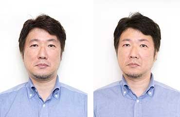 ビフォー(左)とアフター(右)。顔の印象がスッキリした