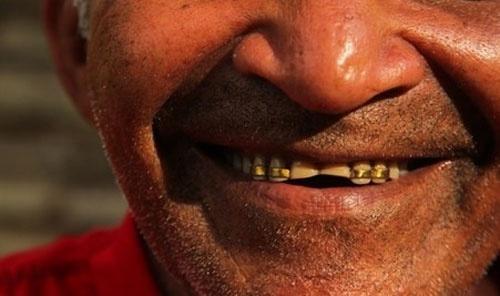 盗まれないためか、取り分の金を歯に埋め込んでいるガリンペイロもいた  (c)Eduard MAKINO