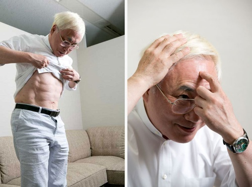 <b>整形手術で腹筋を割った高須院長</b>(左)<br /><b>頭皮には植毛。人工であることが分かるよう、あえて太い毛を植毛している</b>(右)