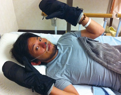 2012年秋のエベレスト挑戦で、右手親指を除く9本の手の指が重い凍傷に。懸命の治療が続く。