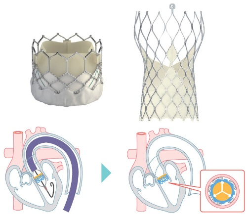 図 経カテーテル大動脈弁置換術(TAVI)に使われる生体弁フレーム(上)と装填の様子