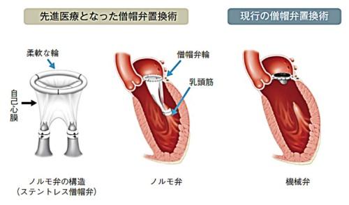 図 自己弁膜製ステントレス僧房弁置換術で使われる「ノルモ弁」