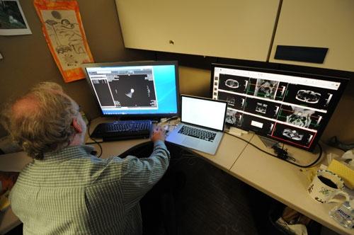マサチューセッツ総合病院でAI医療の実証実験が進む