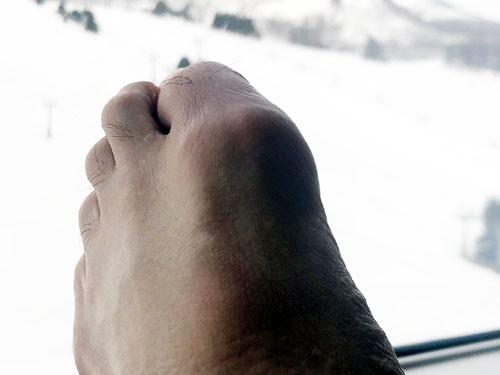 ご覧くださいこの腫れた足。「月に雁」ならぬ「雪に痛風」です。痛い。