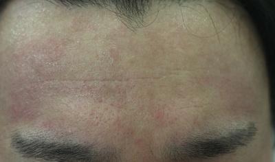 顔の肌が乾燥し、ポツポツと赤味が広がっている症状。(写真提供:菊池皮膚科医院)